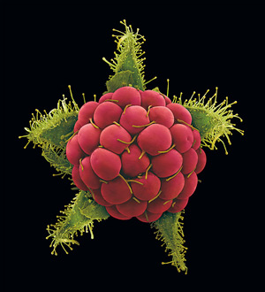 Scanning electron microscope photograph of plants by Rob Kesseler